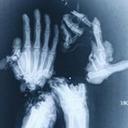 手が蟹バサミになった!? バラバラになった手を縫い合わせたら・・・!! ~中国驚愕の手術、第2弾!~