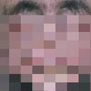 """【閲覧注意】""""ヴァンパイア顔""""になりゆく病 ― 吸血鬼伝説の元になった、恐ろしすぎる奇病"""