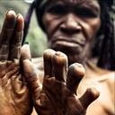 【閲覧注意】死者のために指を切断する「ダニ族」の痛すぎる奇習!
