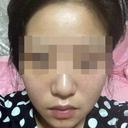 """「韓国で整形するとヘビ女になる!?」中国""""美容整形難民""""たちが、今度は日本へ?"""