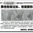 """小学生も巻き込む「包茎手術ブーム」の中国で死亡事故! 激安手術の裏で、""""やっぱり""""トラブル続発中"""