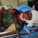 【閲覧注意】凶暴化した狼犬2匹に襲われ、頭蓋骨露出! 飼い主は現場から立ち去る