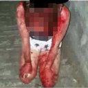 韓国の女子中学生が後輩を壮絶リンチ、血まみれに…… 被害少女「2カ月前にも暴行されていた」