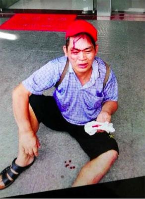 実際に出血まで……プロ当たり屋「赤帽おじさん」ついに御用の画像1