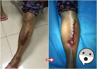夫が妻の脚を裁縫用の糸と針で傷口を縫合! 中国でDIY手術に手を染める人が続出のワケの画像1