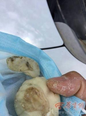 幼稚園「餃子パーティー」で保護者大荒れ! 変色した餃子の皮はネズミの糞入りだった!?の画像2