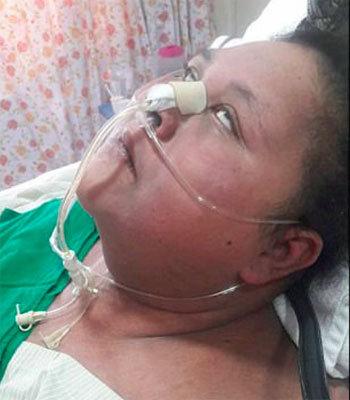 減量手術失敗のインドからUAEの病院へ転院も……「世界一おデブな女性」が死亡の画像1