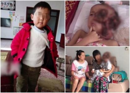 安楽死を願う親も……巨大腫瘍に苦しむ中国の子どもたち「頼みの綱は募金」の画像1