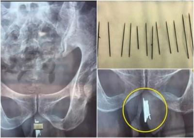 1年かけて針15本をアソコへ……アナルだけじゃない、中国人の異物挿入事件の画像1