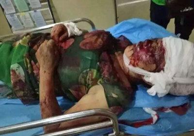 【閲覧注意】凶暴化した狼犬2匹に襲われ、頭蓋骨露出! 飼い主は現場から立ち去るの画像1