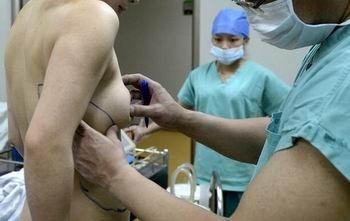 豊胸手術で可動式おっぱいに!? 偽乳が背中にお引っ越しの画像2