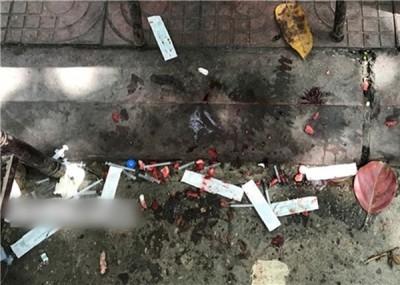 路上で犬の声帯除去手術を行う闇業者が出現「縄で口をこじ開け、はさみでチョキン!」の画像3