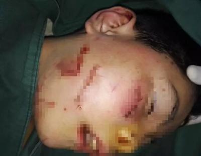 10歳男児に馬乗りで顔面メッタ刺し……モンスター級の凶悪事件に人民騒然!の画像1