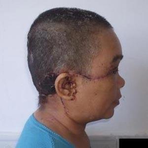 【閲覧注意】機械に髪が巻き込まれ、頭皮まるごとズルッ! 中国人女性が200針を縫う大ケガの画像3