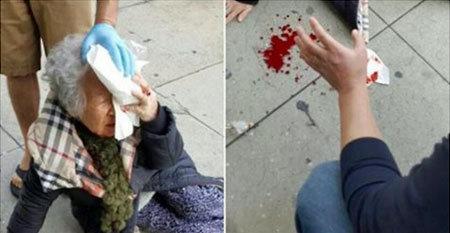 「白人の力を思い知れ!」LAで白人が突然、韓国系老婦人を襲撃!? でっち上げ説も……の画像1