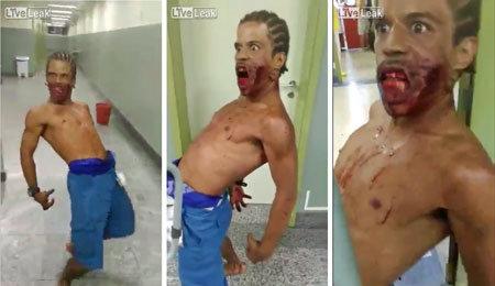 【衝撃映像】ブラジル・リオの病院で口を銃で撃たれた男がゾンビに!?の画像1